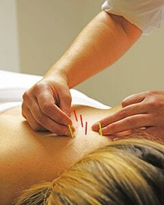 Acupuncture needles applied to the back